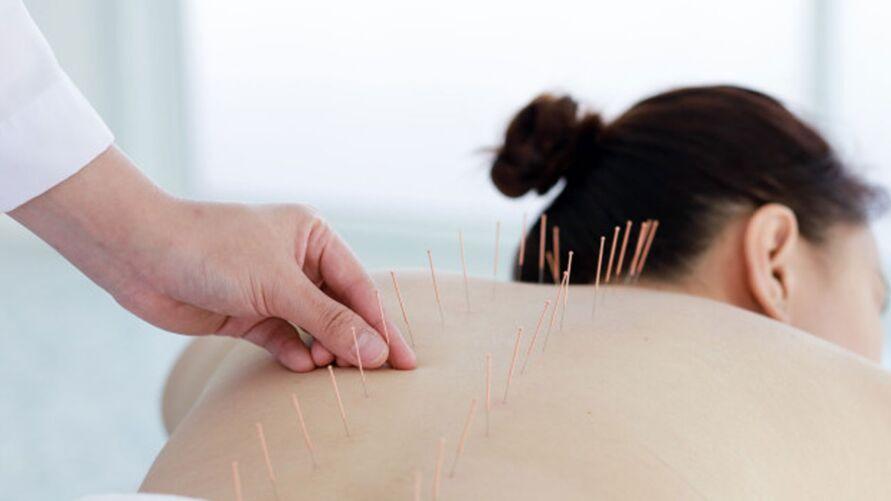 acupuntura em gestante
